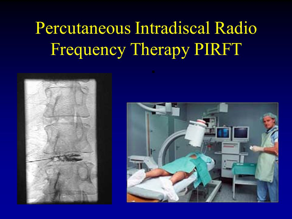 Percutaneous Intradiscal Radio Frequency Therapy PIRFT