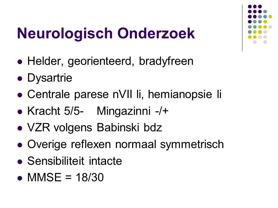 Neurologisch Onderzoek Helder, georienteerd, bradyfreen Dysartrie Centrale parese nVII li, hemianopsie li Kracht 5/5- Mingazinni -/+ VZR volgens Babin