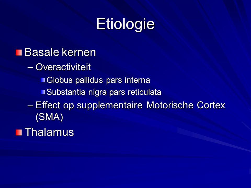 Etiologie Basale kernen –Overactiviteit Globus pallidus pars interna Substantia nigra pars reticulata –Effect op supplementaire Motorische Cortex (SMA