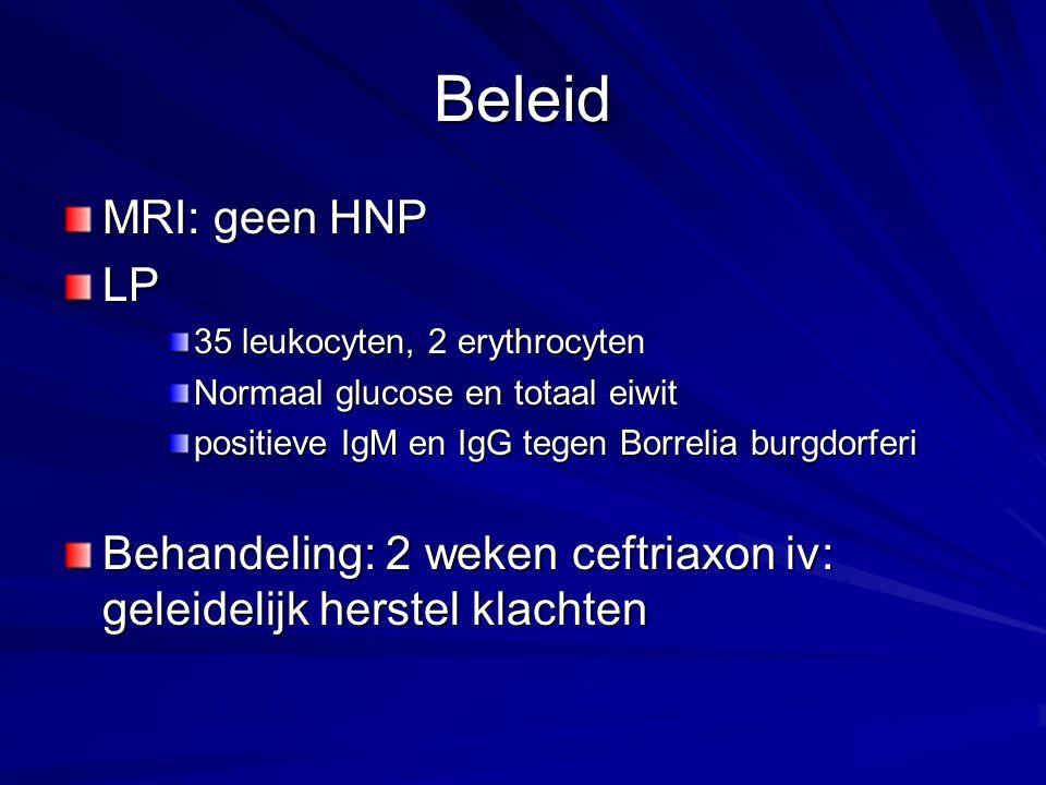 Beleid MRI: geen HNP LP 35 leukocyten, 2 erythrocyten Normaal glucose en totaal eiwit positieve IgM en IgG tegen Borrelia burgdorferi Behandeling: 2 w