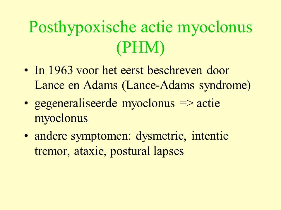 Posthypoxische actie myoclonus (PHM) In 1963 voor het eerst beschreven door Lance en Adams (Lance-Adams syndrome) gegeneraliseerde myoclonus => actie