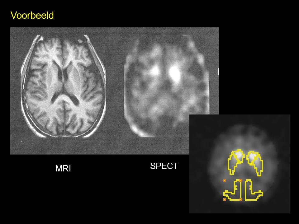 MRI SPECT Voorbeeld