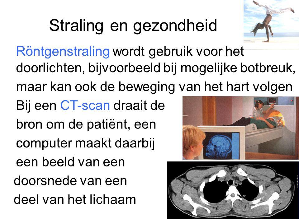 Straling en gezondheid Röntgenstraling wordt gebruik voor het doorlichten, bijvoorbeeld bij mogelijke botbreuk, maar kan ook de beweging van het hart