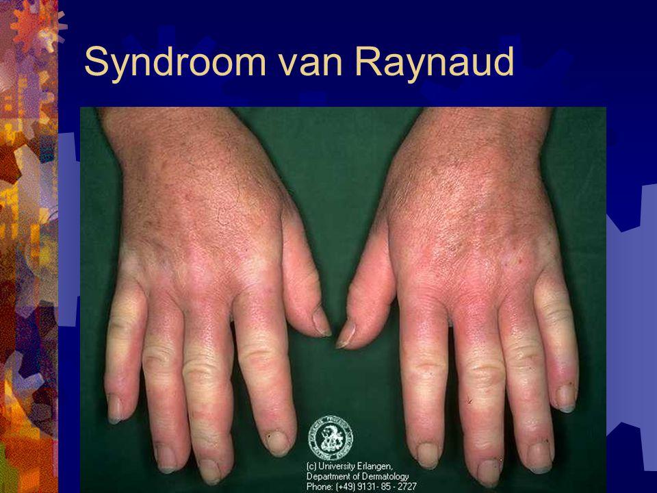 Effecten hand-arm trillingen (2) - gewrichts- en botaandoeningen - vervroegde arthrose pols-, elleboog- en schoudergewricht (<100Hz) - vermoedelijk lawaaidoofheid?.