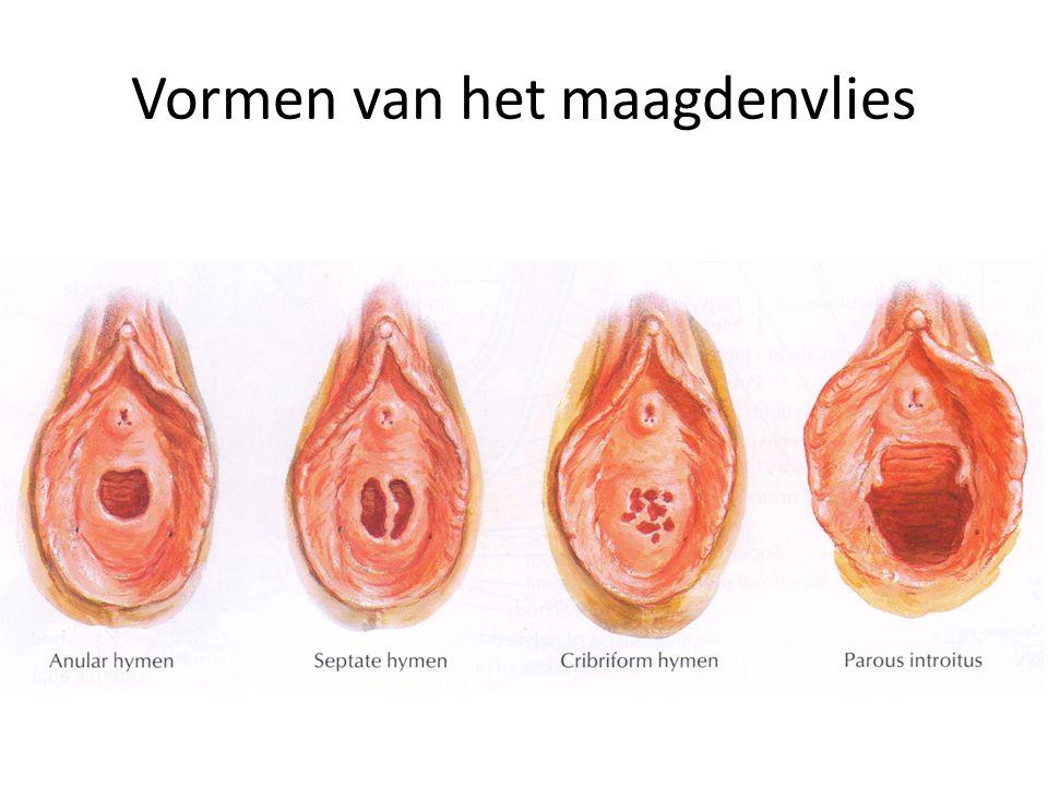 Vormen van het maagdenvlies