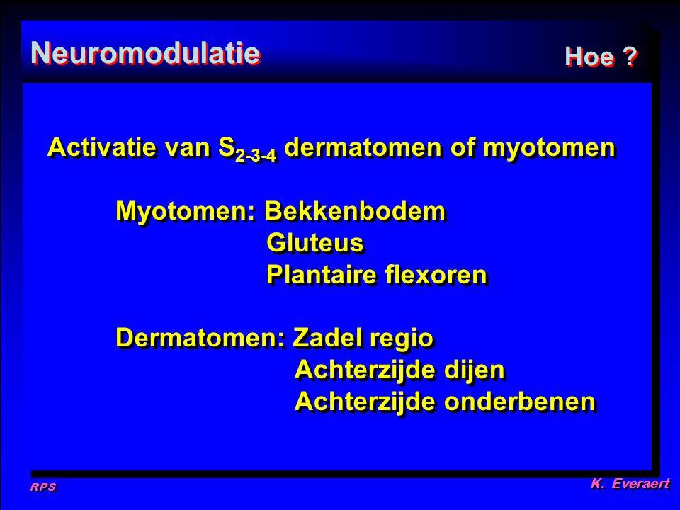 RPS K. Everaert Neuromodulatie Hoe ? Activatie van S 2-3-4 dermatomen of myotomen Myotomen: Bekkenbodem Gluteus Plantaire flexoren Dermatomen: Zadel r