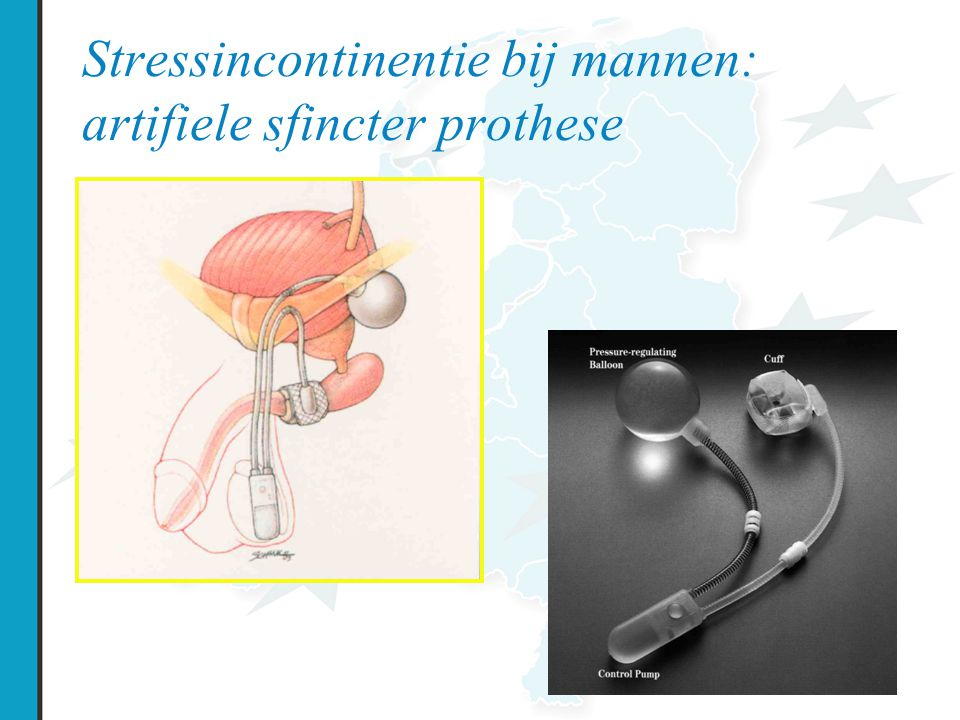 Stressincontinentie bij mannen: artifiele sfincter prothese
