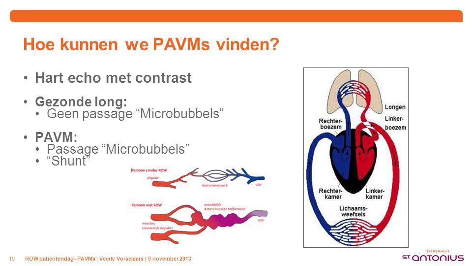 """Hoe kunnen we PAVMs vinden? Hart echo met contrast Gezonde long: Geen passage """"Microbubbels"""" PAVM: Passage """"Microbubbels"""" """"Shunt"""" 10ROW patiëntendag -"""