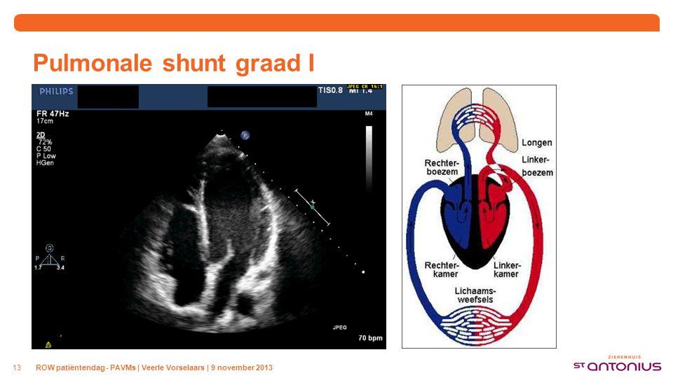 Pulmonale shunt graad I ROW patiëntendag - PAVMs | Veerle Vorselaars | 9 november 201313