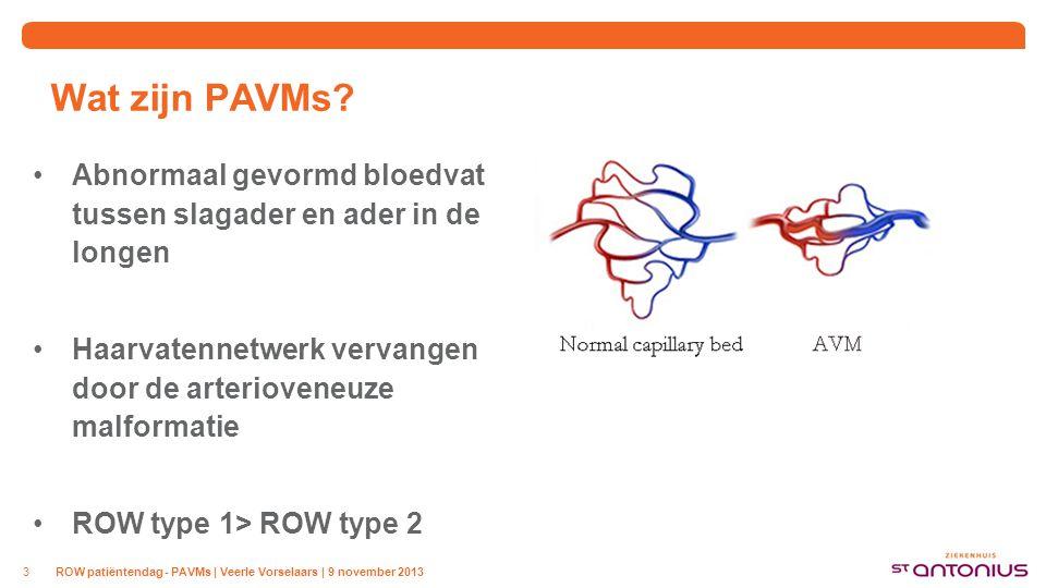 Wat zijn PAVMs? Abnormaal gevormd bloedvat tussen slagader en ader in de longen Haarvatennetwerk vervangen door de arterioveneuze malformatie ROW type