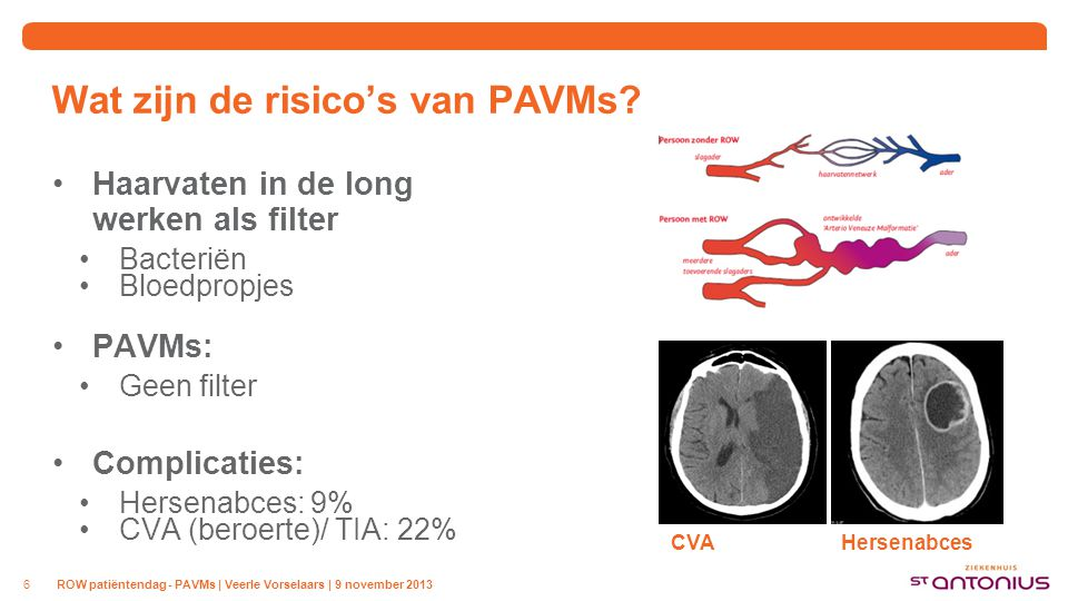 Wat zijn de risico's van PAVMs? Haarvaten in de long werken als filter Bacteriën Bloedpropjes PAVMs: Geen filter Complicaties: Hersenabces: 9% CVA (be