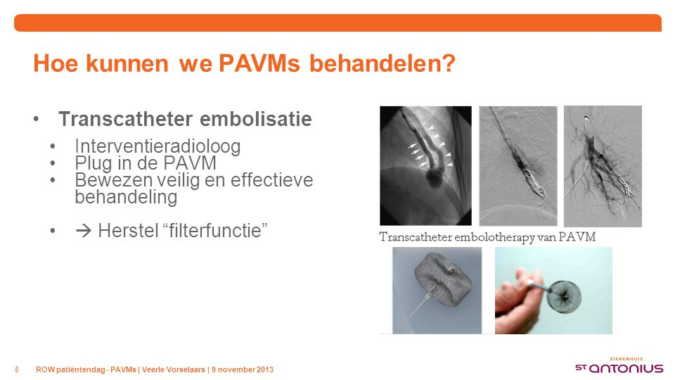 """Hoe kunnen we PAVMs behandelen? Transcatheter embolisatie Interventieradioloog Plug in de PAVM Bewezen veilig en effectieve behandeling  Herstel """"fil"""