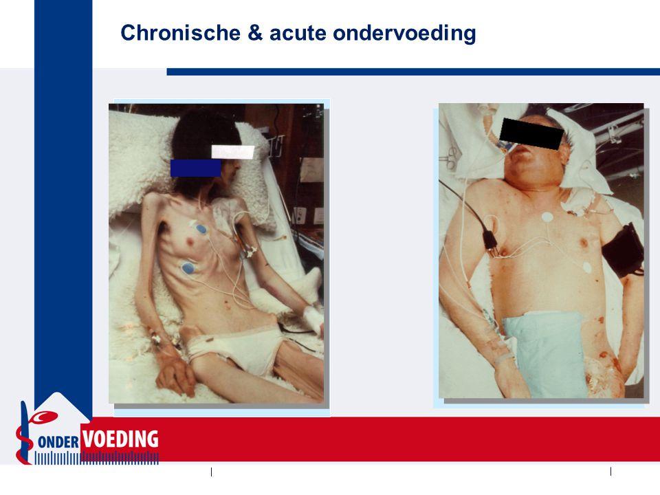 Chronische & acute ondervoeding