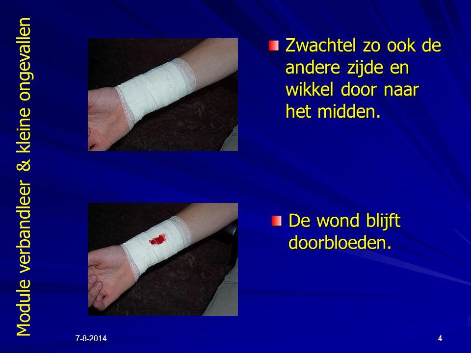 Module verbandleer & kleine ongevallen 7-8-20144 Zwachtel zo ook de andere zijde en wikkel door naar het midden. De wond blijft doorbloeden.