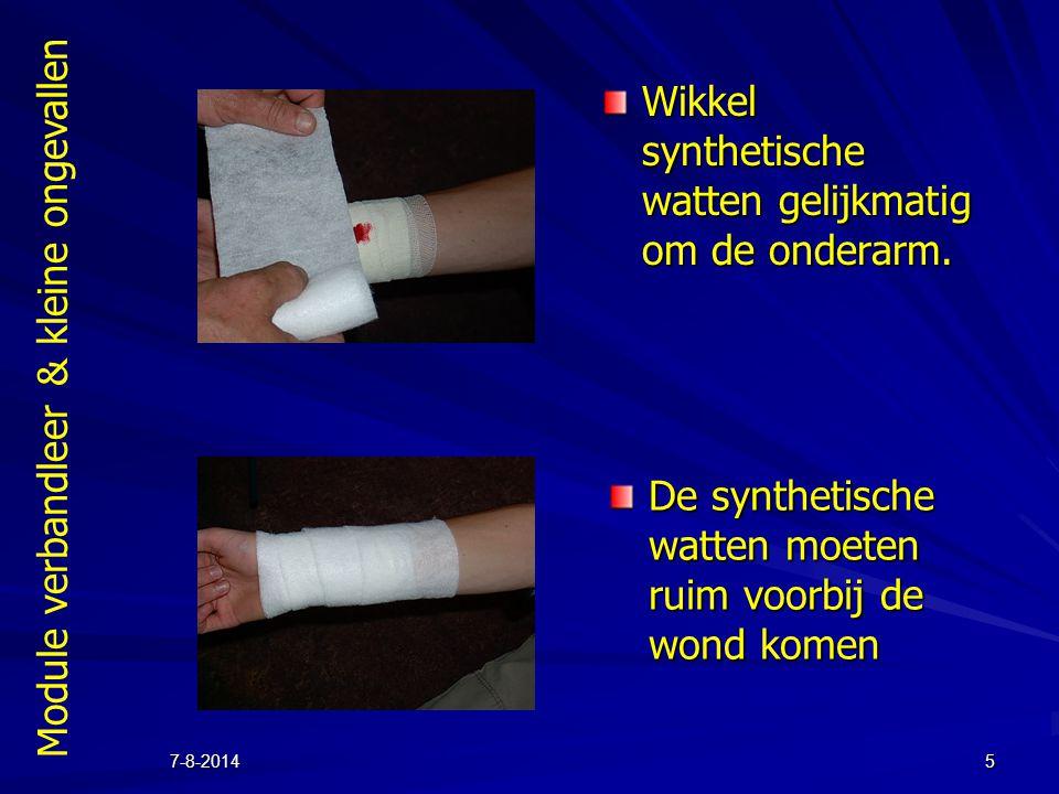 Module verbandleer & kleine ongevallen 7-8-20145 Wikkel synthetische watten gelijkmatig om de onderarm. De synthetische watten moeten ruim voorbij de