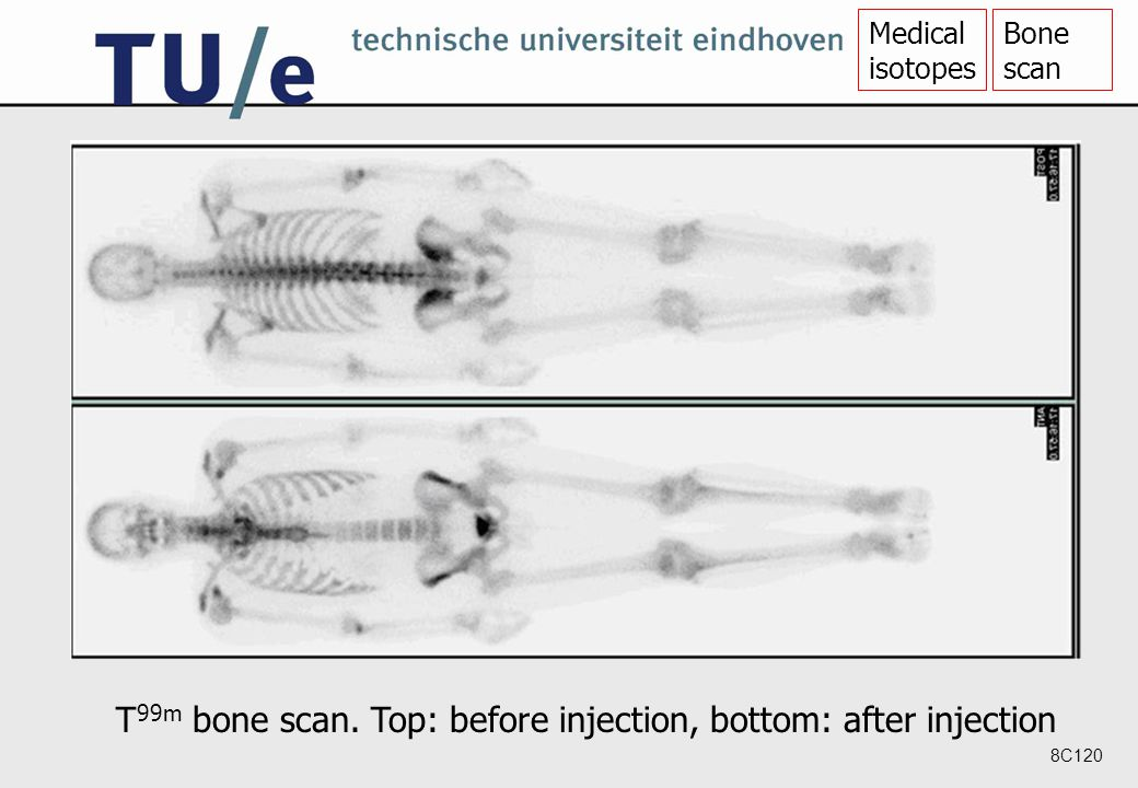 8C120 T 99m bone scan. Top: before injection, bottom: after injection Medical isotopes Bone scan