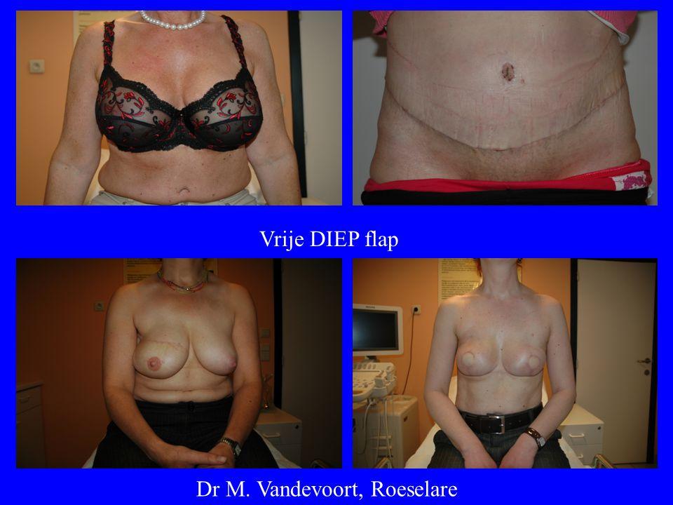 Dr M. Vandevoort, Roeselare Vrije DIEP flap