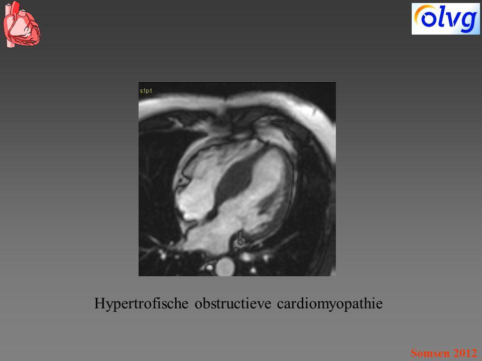 Somsen 2012 Hypertrofische obstructieve cardiomyopathie