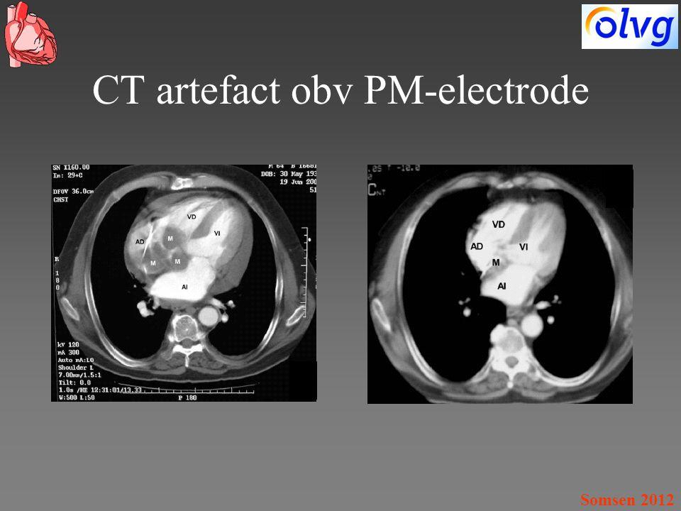 Somsen 2012 CT artefact obv PM-electrode