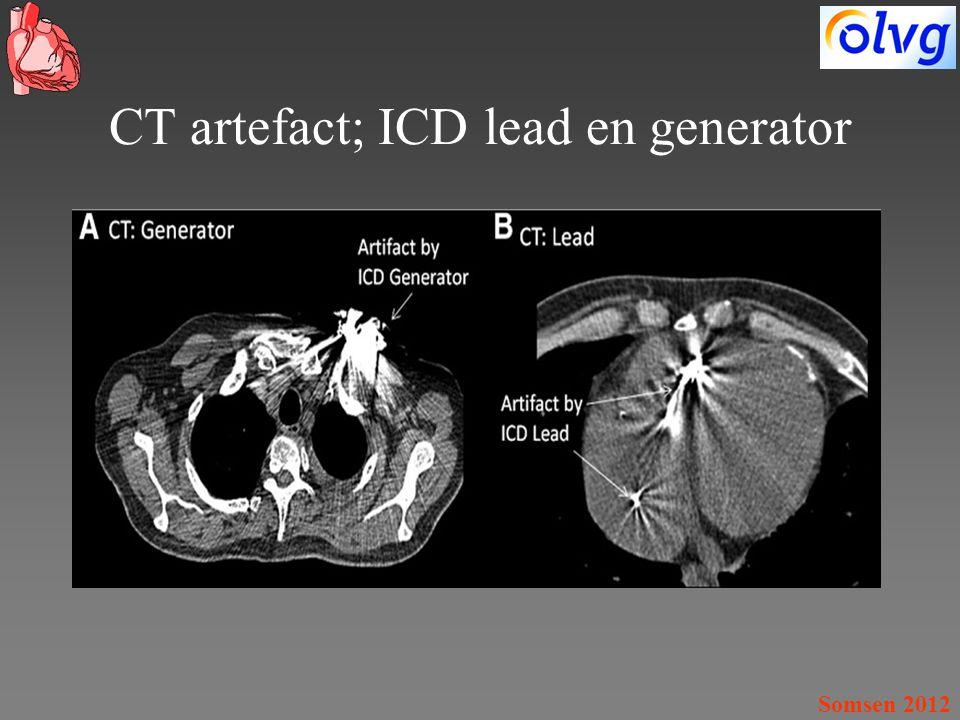 Somsen 2012 CT artefact; ICD lead en generator