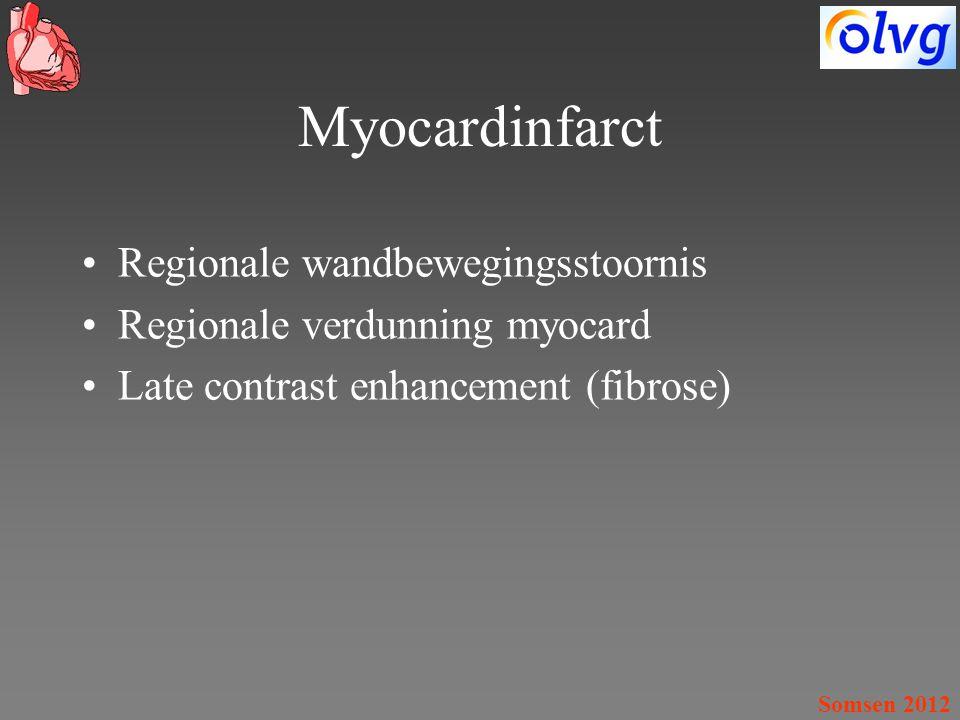 Somsen 2012 Myocardinfarct Regionale wandbewegingsstoornis Regionale verdunning myocard Late contrast enhancement (fibrose)