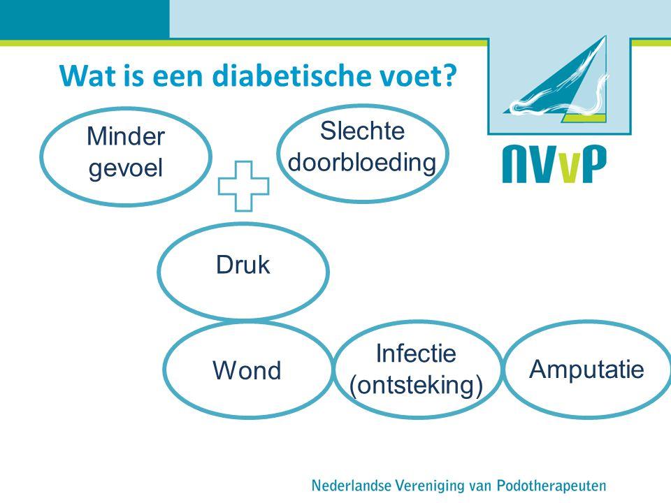Wat is een diabetische voet? Minder gevoel Slechte doorbloeding Amputatie Druk Wond Infectie (ontsteking)