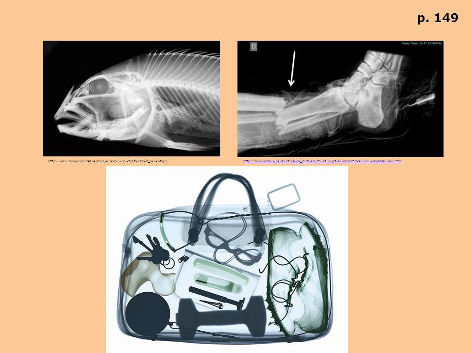 Röntgenstraling dringt door bijna alle stoffen heen.