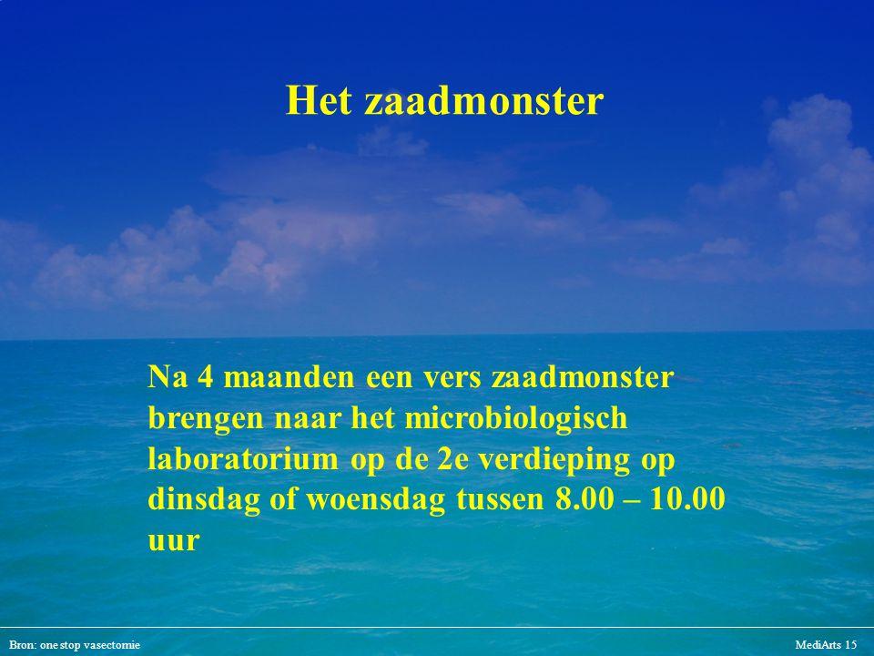 Bron: one stop vasectomieMediArts 15 Het zaadmonster Na 4 maanden een vers zaadmonster brengen naar het microbiologisch laboratorium op de 2e verdiepi