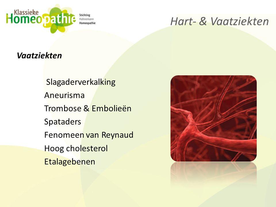 Begrippen die te maken hebben met hart en vaatziekten: Katheteriseren Dotteren Open hart operatie Stents By pass operatie Angina Pectoris Hart- & Vaatziekten