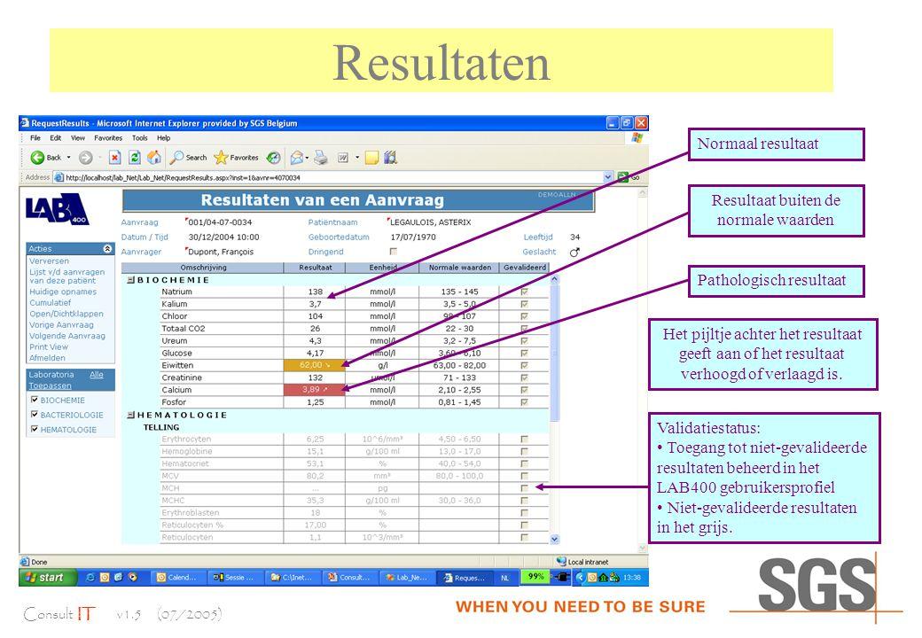 Consult IT v1.5 (07/2005) Resultaten Normaal resultaat Resultaat buiten de normale waarden Pathologisch resultaat Validatiestatus: Toegang tot niet-gevalideerde resultaten beheerd in het LAB400 gebruikersprofiel Niet-gevalideerde resultaten in het grijs.