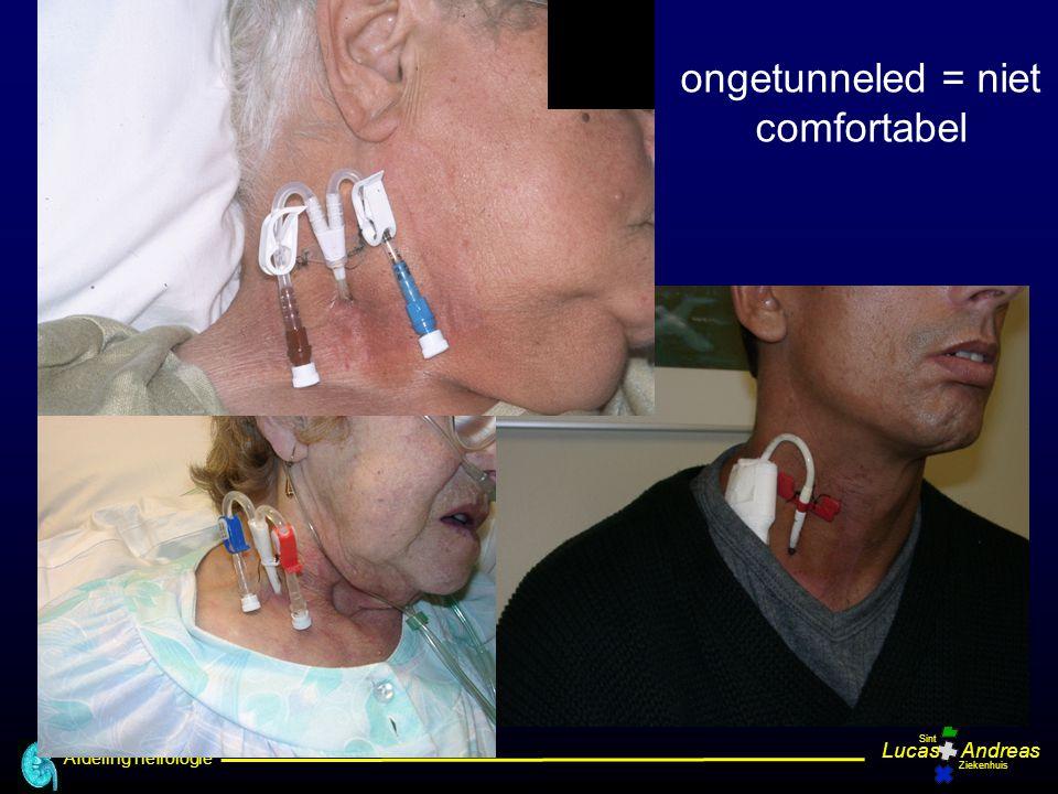 Afdeling nefrologie LucasAndreas Sint Ziekenhuis ongetunneled = niet comfortabel