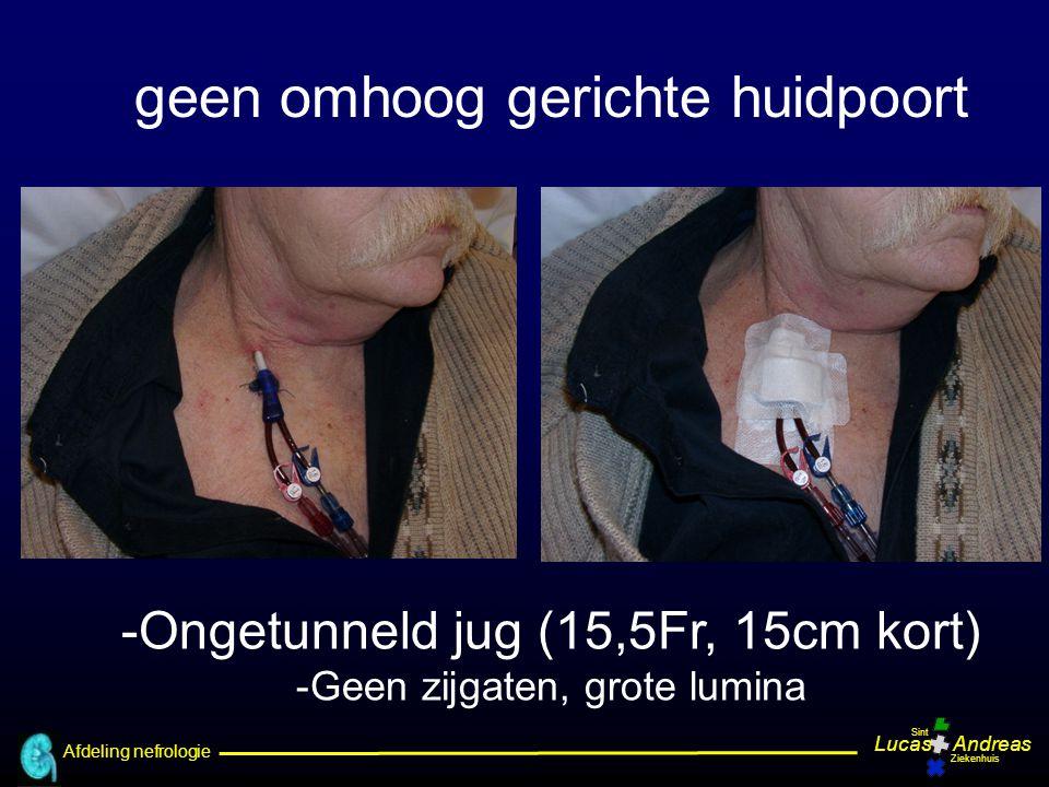 Afdeling nefrologie LucasAndreas Sint Ziekenhuis -Ongetunneld jug (15,5Fr, 15cm kort) -Geen zijgaten, grote lumina geen omhoog gerichte huidpoort