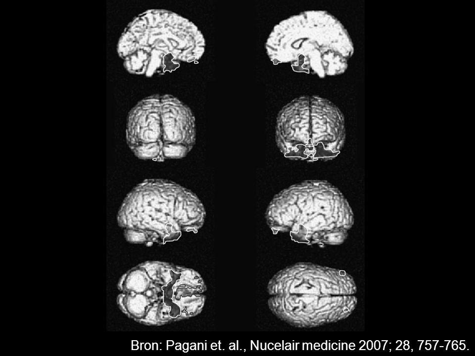 Bron: Pagani et. al., Nucelair medicine 2007; 28, 757-765.