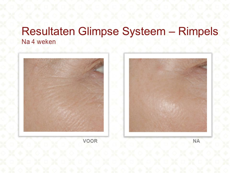 Using Glimpse system for 4 weeks VOORNA Resultaten Glimpse Systeem – Rimpels Na 4 weken