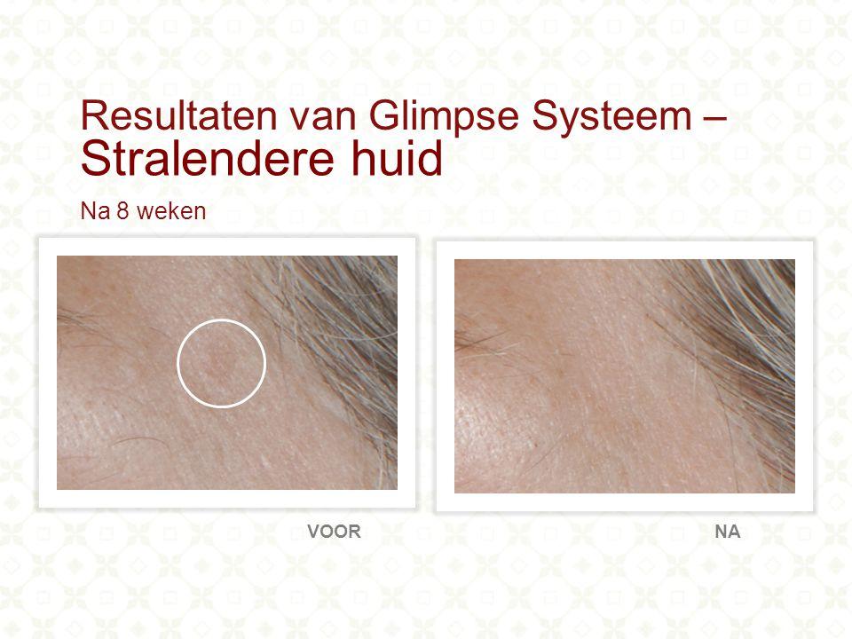 80% Ervoer minder fijne lijntjes en rimpels 90% Vertoonde een beter gehydrateerde huid 100% Meldde een heldere teint van de huid Hoogtepunten: Klinische resultaten van Glimpse