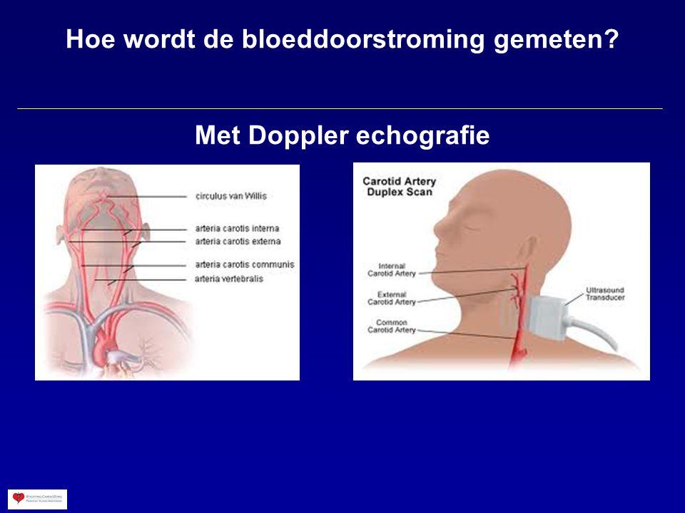 Hoe wordt de bloeddoorstroming gemeten? Met Doppler echografie