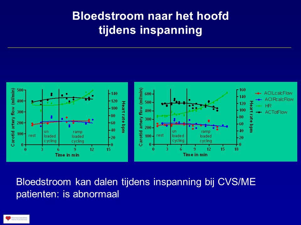 Bloedstroom naar het hoofd tijdens inspanning Bloedstroom kan dalen tijdens inspanning bij CVS/ME patienten: is abnormaal