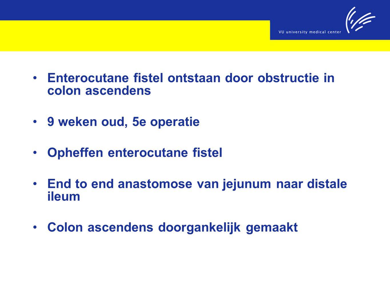 Enterocutane fistel ontstaan door obstructie in colon ascendens 9 weken oud, 5e operatie Opheffen enterocutane fistel End to end anastomose van jejunu