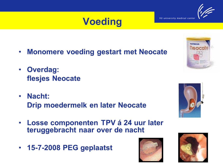 Voeding Monomere voeding gestart met Neocate Overdag: flesjes Neocate Nacht: Drip moedermelk en later Neocate Losse componenten TPV á 24 uur later ter