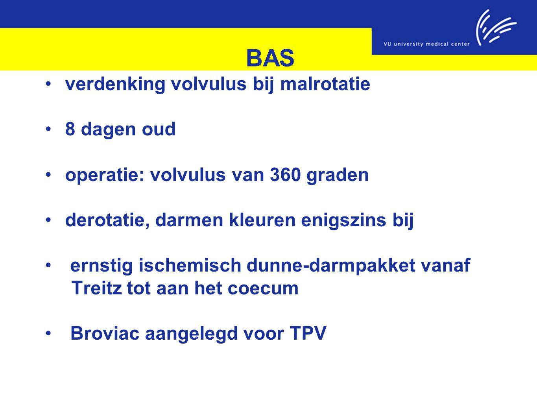BAS verdenking volvulus bij malrotatie 8 dagen oud operatie: volvulus van 360 graden derotatie, darmen kleuren enigszins bij ernstig ischemisch dunne-