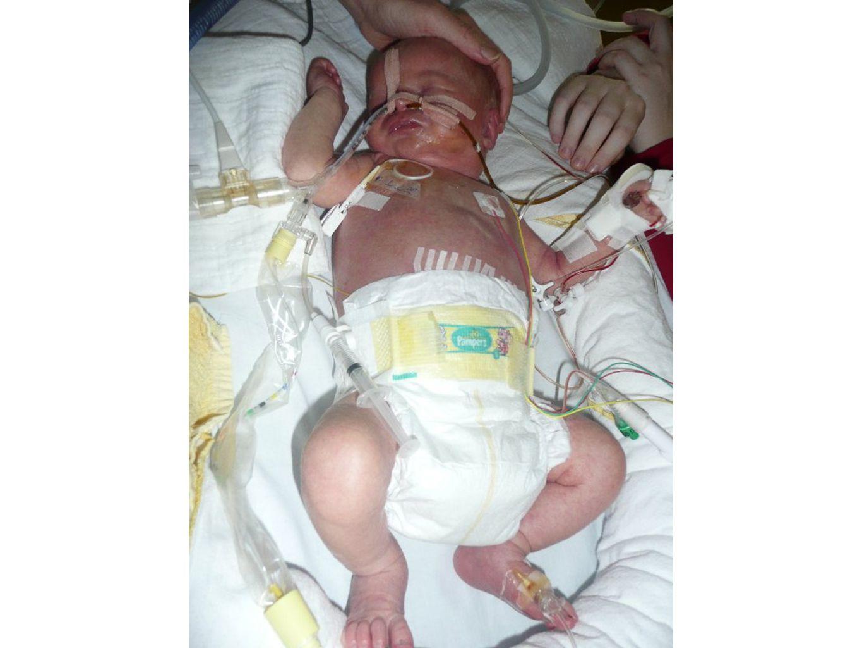 kortedarmsyndroom Definitie: resectie van 70% van dunne darm resterende lengte vanaf Treitz < 75 cm > 6 wkn afhankelijk van TPV Landelijk protocol tbv behandeling van kinderen met korte darmsyndroom 2005