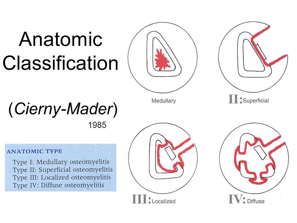 Anatomic Classification (Cierny-Mader) 1985 II: III:IV: