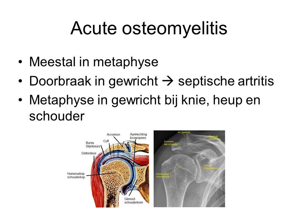Acute osteomyelitis Meestal in metaphyse Doorbraak in gewricht  septische artritis Metaphyse in gewricht bij knie, heup en schouder