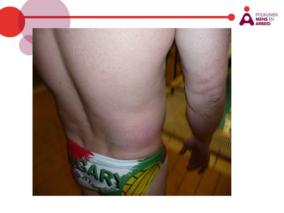 Zwembad II Helpdeskvraag NCvB (juli) Zweminstructrices hebben sinds enige tijd (ongeveer begin dit jaar) klachten van uitslag (bultjes, vlekken), roodheid en jeuk huid.