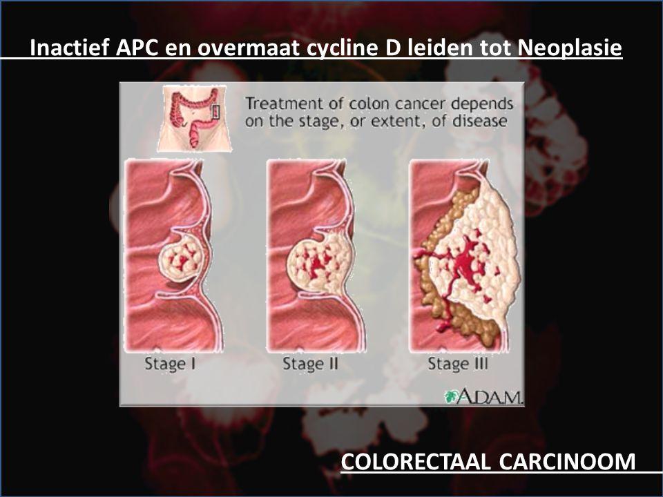 COLORECTAAL CARCINOOM.. Inactief APC en overmaat cycline D leiden tot Neoplasie