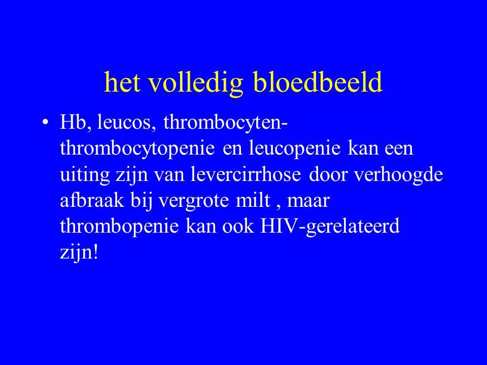 het volledig bloedbeeld Hb, leucos, thrombocyten- thrombocytopenie en leucopenie kan een uiting zijn van levercirrhose door verhoogde afbraak bij vergrote milt, maar thrombopenie kan ook HIV-gerelateerd zijn!