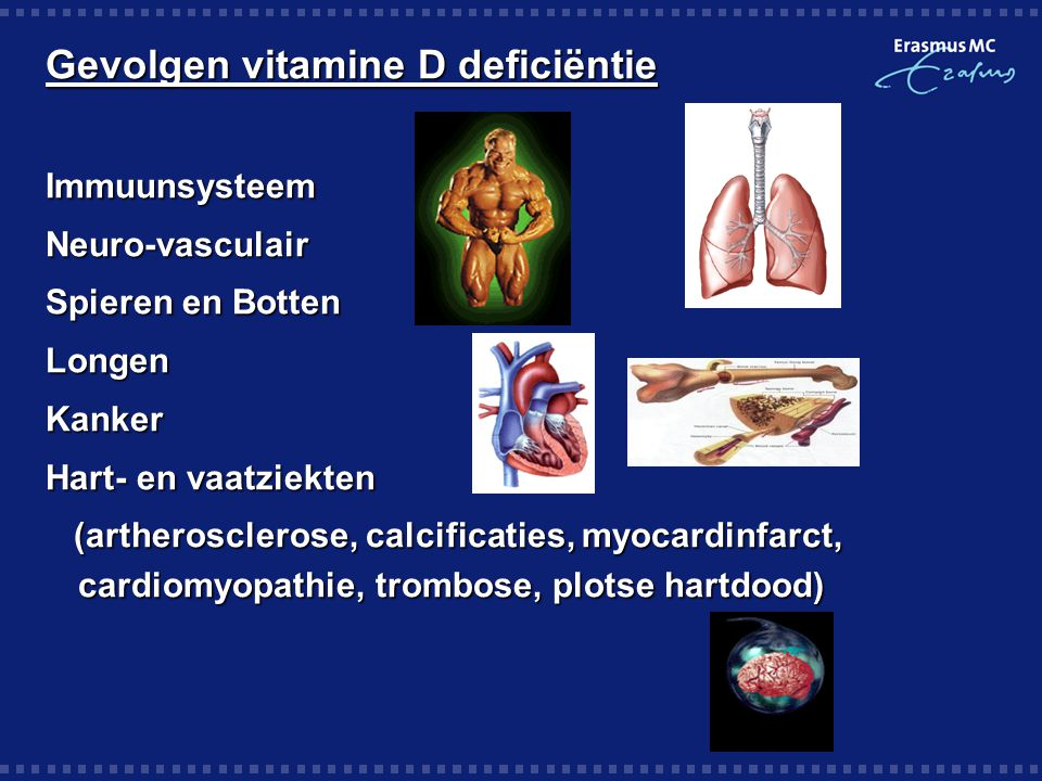 Gevolgen vitamine D deficiëntie ImmuunsysteemNeuro-vasculair Spieren en Botten LongenKanker Hart- en vaatziekten (artherosclerose, calcificaties, myoc