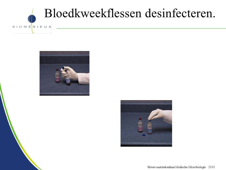 Slotervaartziekenhuis Medische Microbiologie 2010 Bloedkweekflessen desinfecteren.