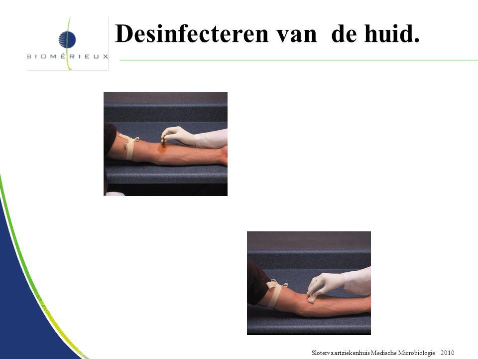 Slotervaartziekenhuis Medische Microbiologie 2010 Desinfecteren van de huid.