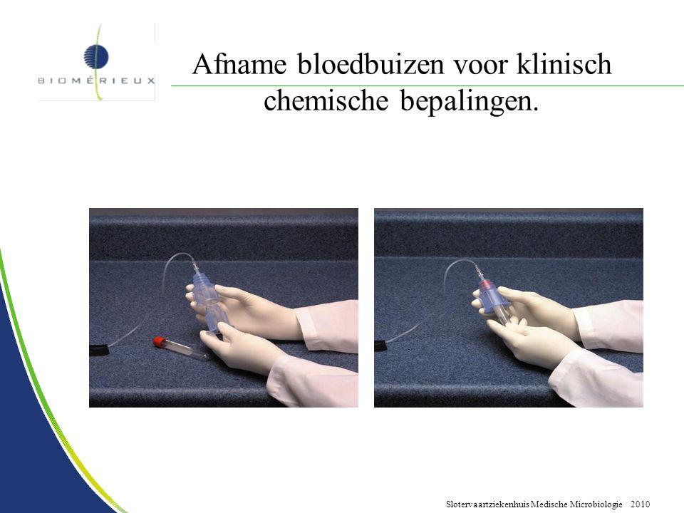 Slotervaartziekenhuis Medische Microbiologie 2010 Afname bloedbuizen voor klinisch chemische bepalingen.